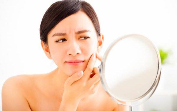 Como Eliminar Granitos De La Cara Fácilmente