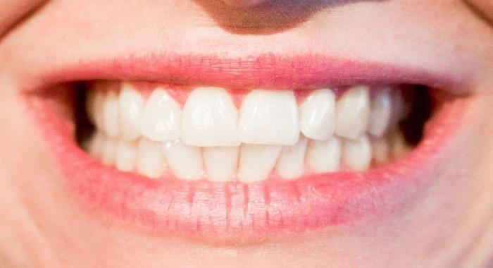 boca agrietada - Trucos infalibles para poder maquillar tus labios agrietados