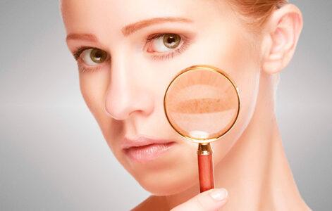 Manchas en la piel, tipos, causas y tratamientos