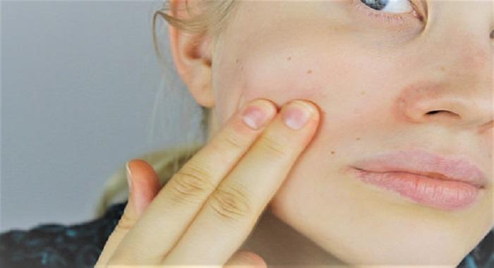 elimina acne curcuma - Elimina las manchas de la cara usando mascarilla de cúrcuma