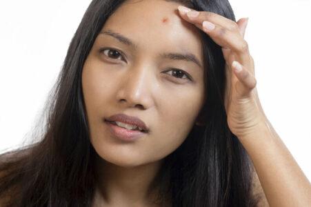5 suplementos que eliminan el acné