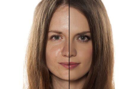 ¿Cómo terminar con la piel grasa?