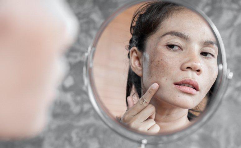En este momento estás viendo Aprenda todo sobre la melanosis solar y cómo prevenir las imperfecciones.