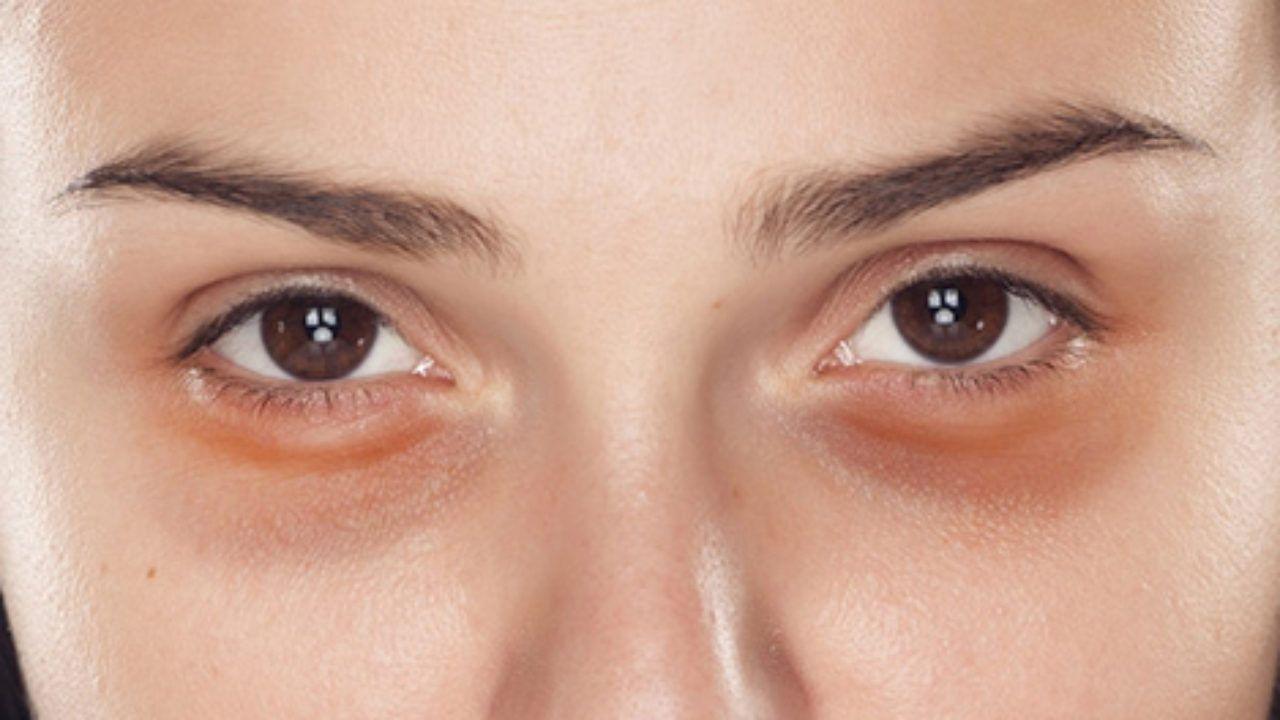 En este momento estás viendo Tipos de ojeras: vea cuál es su tipo y cómo cuidar