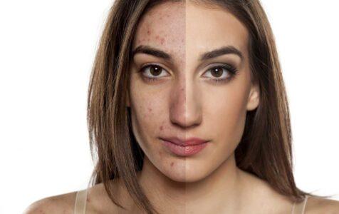 Granos hormonales: influencia de las hormonas en la piel
