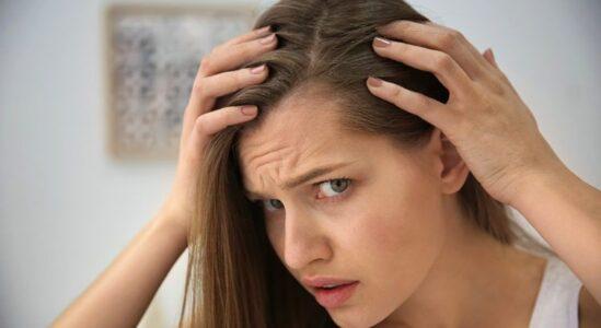 ¿Qué es la alopecia?  Causas y tratamientos para la caída del cabello.