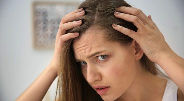 En este momento estás viendo ¿Qué es la alopecia?  Causas y tratamientos para la caída del cabello.
